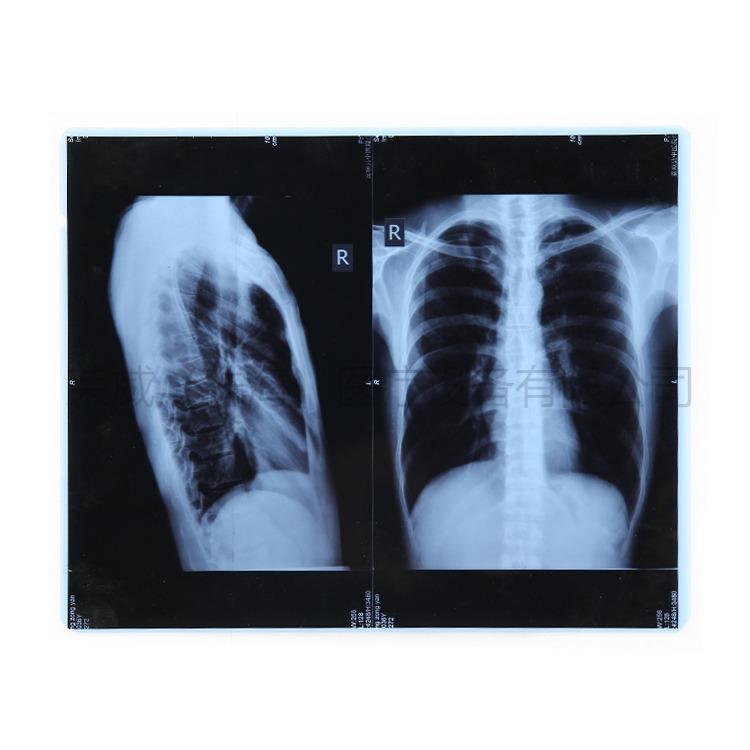 医用胶片的常见规格
