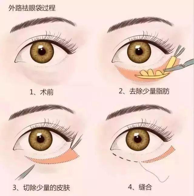 除了做双眼皮,还有什么方法能够放大眼睛?