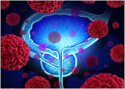前列腺监测研究(PASS)队列中的17基因组前列腺评分测试结果