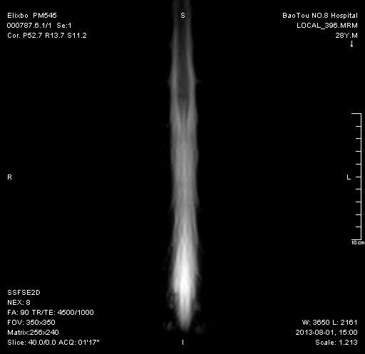 脊髓水成像MRM