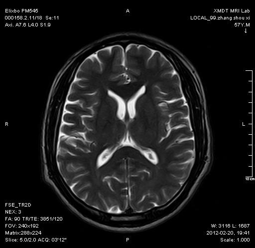 颅脑-Axi-FSE2D-T2WI