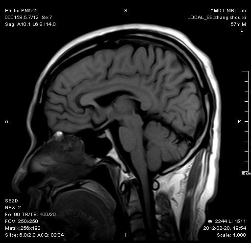 颈椎 SagFSE2D T1WI