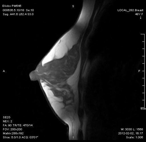 乳腺 SagSE2D T1W