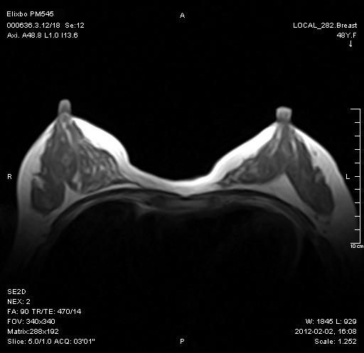 乳腺-Axi-SE-T1WI