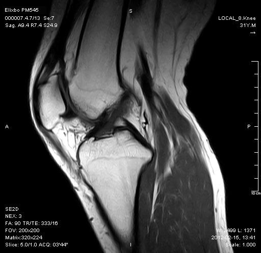 膝关节-Sag-SE-T1WI