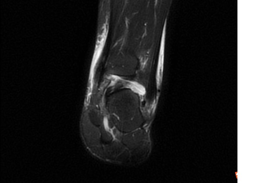 术后MRI2