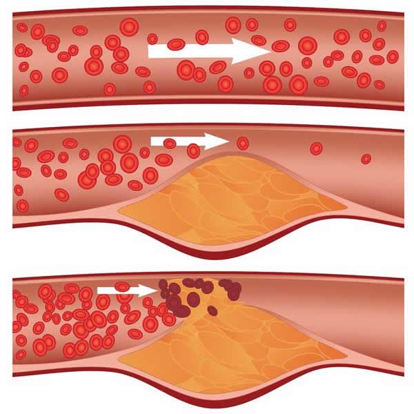 甘油三酯导致的斑块