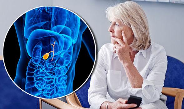 胆囊结石与胆囊癌