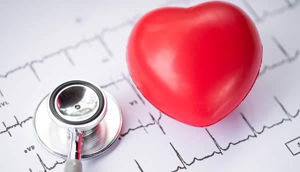 心电图检查1