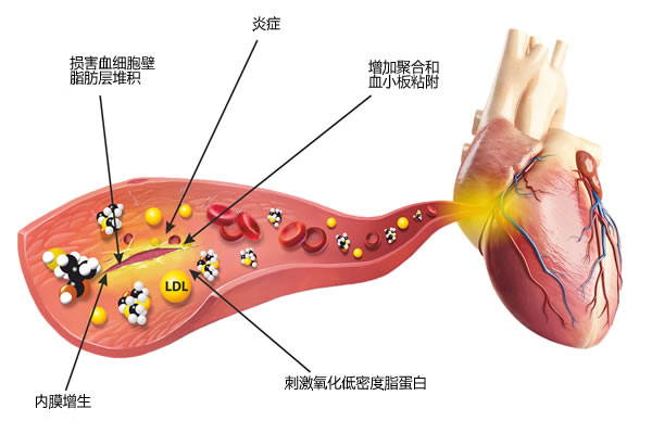 同型半胱氨酸危害